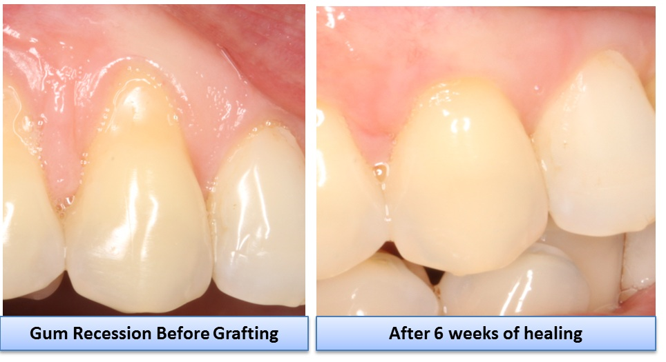 gingival recession