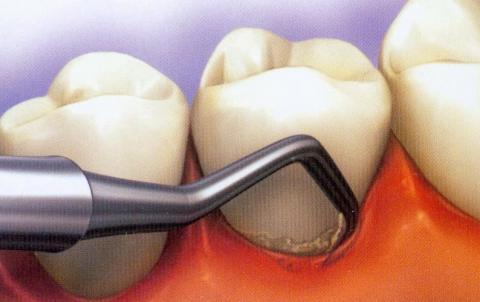 Non Surgical Therapy Gta North Periodontics Amp Endodontics